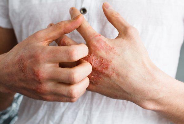 Calanna-Pharmacy-Treating-Eczema