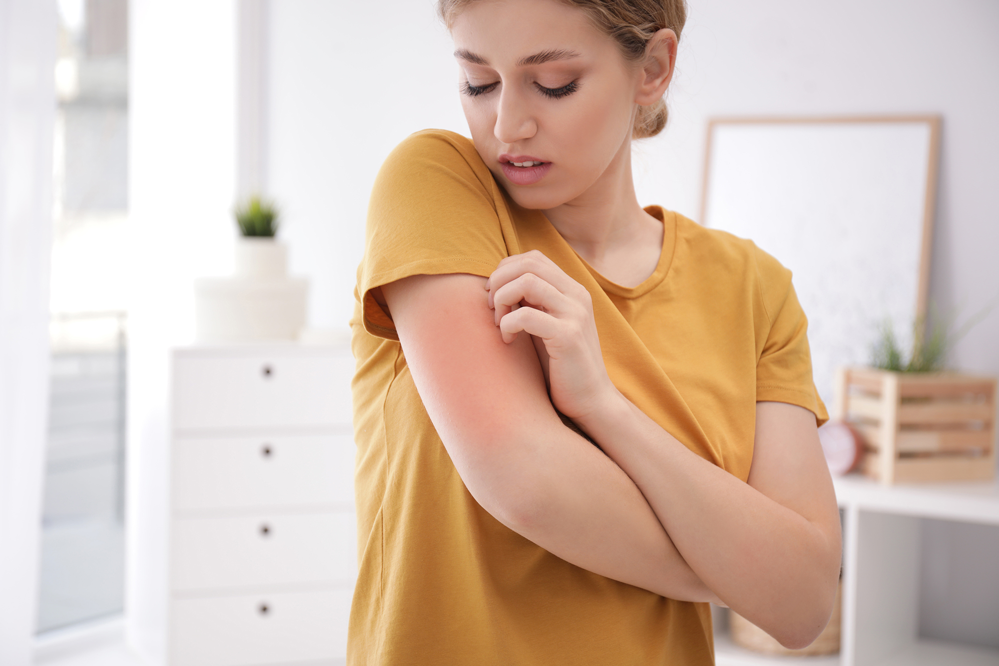 3 common skin allergies, symptoms and treatments