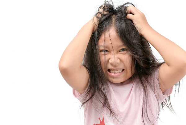 calanna-whole-health-pharmacy-tips-for-preventing-head-lice