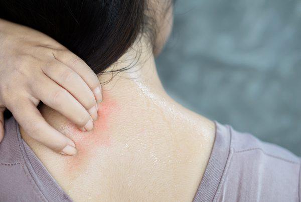 calanna-whole-health-pharmacy-treating-prickly-heat-rash-naturally