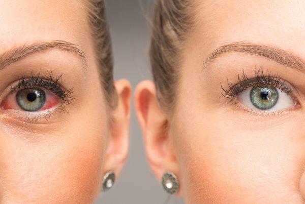 Calanna-Pharmacy-bleeding-eye-symptoms-and-treatment