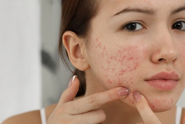 calanna-whole-health-pharmacy-everything-you-need-to-know-about-acne