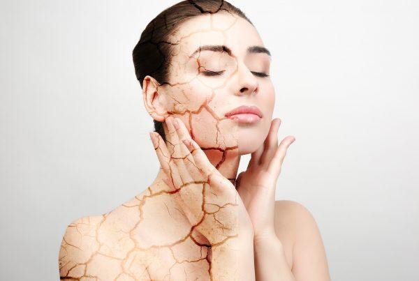 calanna_whole_health_pharmacy_dry_skin